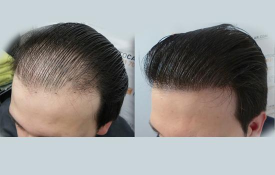 Hair Transplant Mohali
